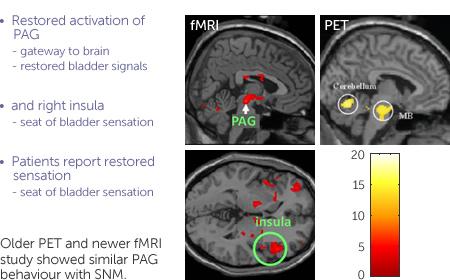 Brain graphic